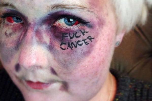 Здоровье: Женщина, которая написала «F *** рак» на своем лице, умерла от лейкемии
